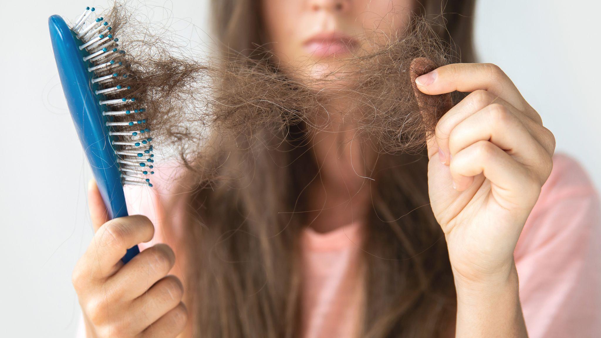 5 biên pháp trị rụng tóc tại nhag